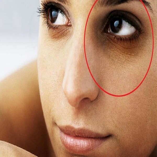 easy skin care tips on how to remove dark circles